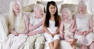 Born With Albinism On TLC Sees Fans Calling For A Full Show